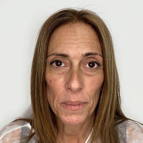 acido hialuronico armonización facial