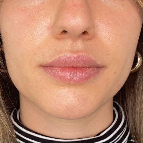 before and after relleno de labios con acido hialuronico clinica tufet barcelona