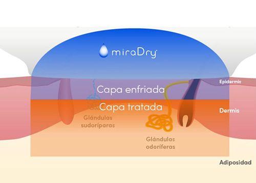 MIRADRY exceso de sudoración axilar