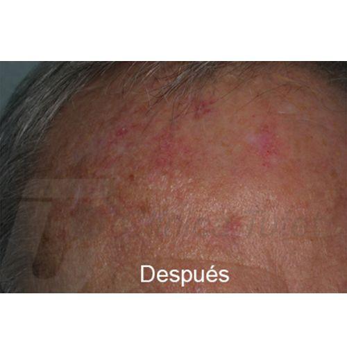 queratosis actínica clinica tufet