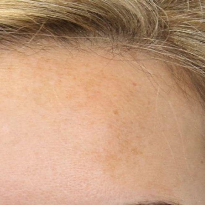 hydrafacial limpieza facial