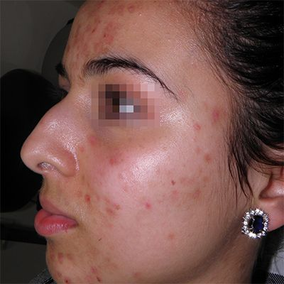 antes y despues tratamiento acné clinica tufet barcelona