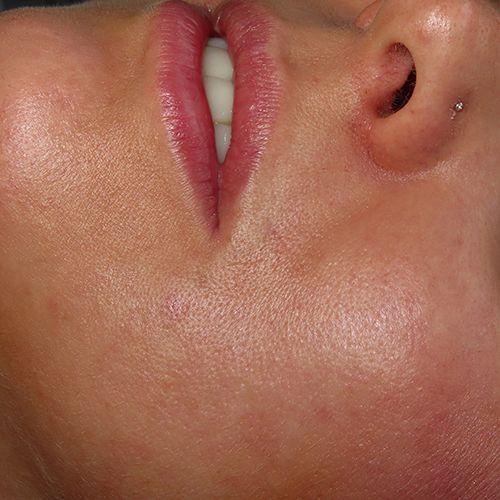 cerrar agujero piercing clinica tufet barcelon