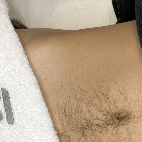 eliminación de tatuajes laser picoway