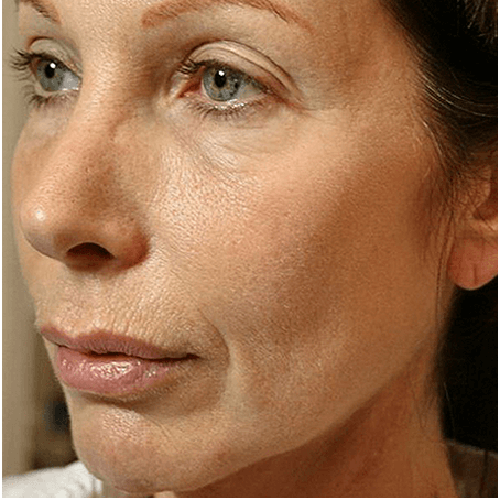 thermage flx flacidez facial