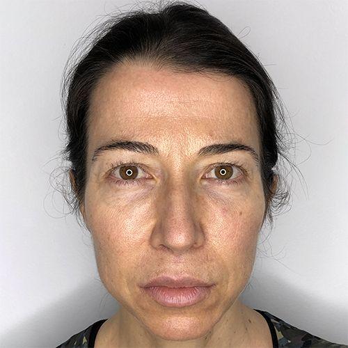 armonización facial acido hialuronico femilook