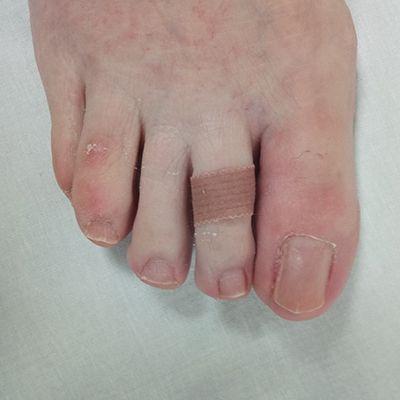 onicocriptosis o uña encarnada tratamiento clinica tufet