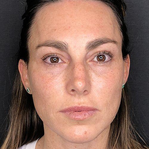 hydrafacial limpieza facial profunda barcelona