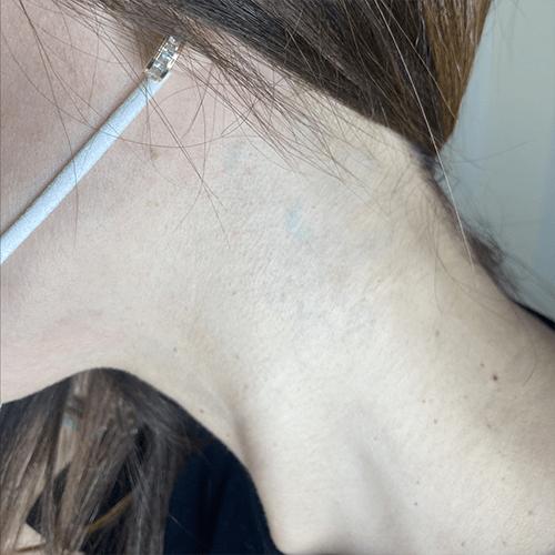 antes y despues eliminación de tatuajes