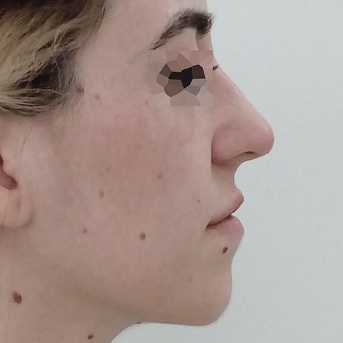antes y despues rinomodelacion